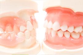 入れ歯の相談